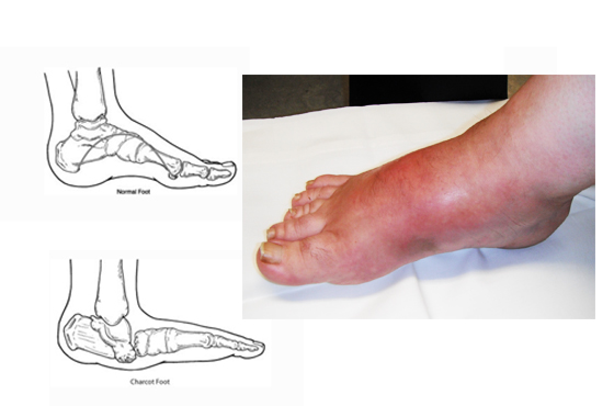 560 X 370 CHARCOT FOOT - PODIATRY- LINK PAGE