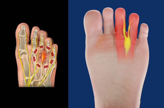 560 X 370 Neuroma or Morton's neuroma - PODIATRY- LINK PAGE