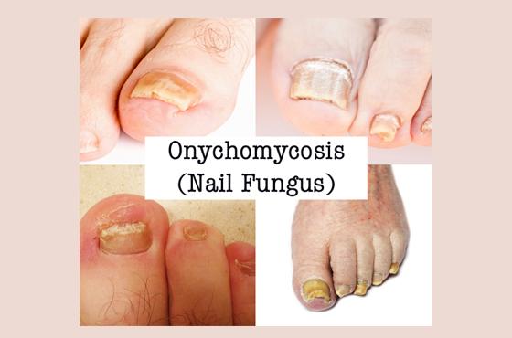 560 X 370 Toenail Fungus Onychomycosis - PODIATRY- LINK PAGE