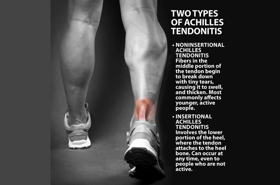 560 X 370 Two type of achilles tendonitis - PODIATRY- LINK PAGE