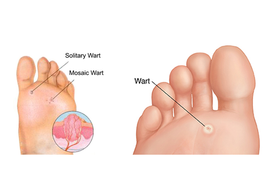560 X 370 Warts - PODIATRY- LINK PAGE