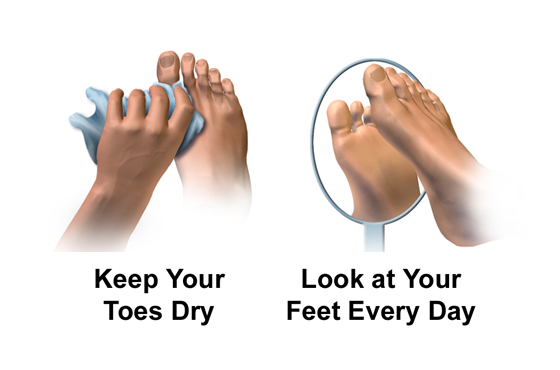 560 X 370 keep your toes dry PODIATRY- LINK PAGE