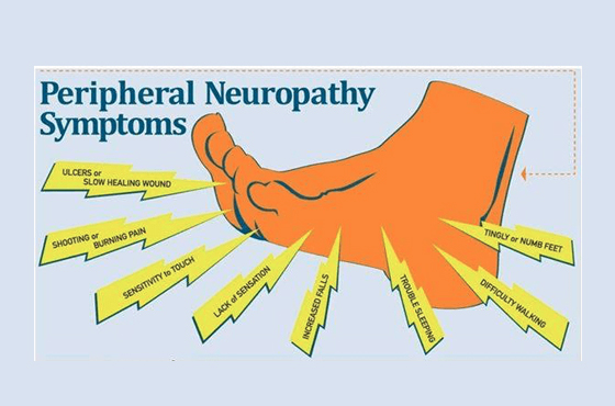 560 X 370 peripheral neuropathy symptoms- PODIATRY- LINK PAGE