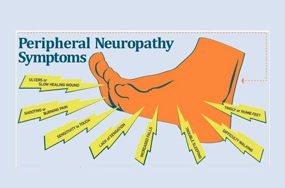 560 X 370 peripheral neuropathy symptoms- PODIATRY- LINK PAGE